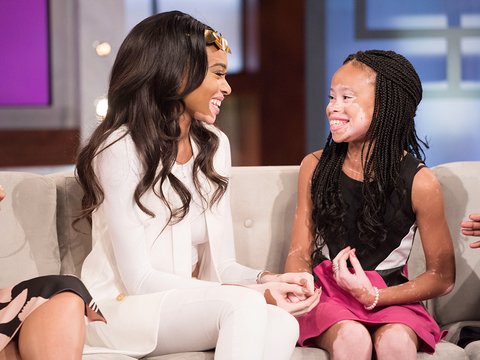 Winnie Harlow Surprises 10-Year-Old Aspiring Model!